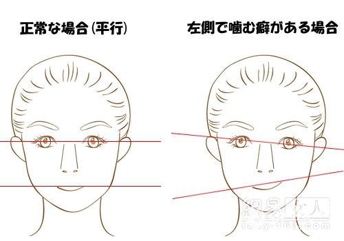你左右脸不对称吗?脸部歪斜矫正术还你美人颜